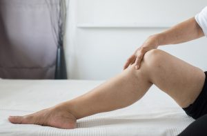 varicose-veins-treatment-cause